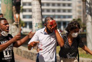 Daniel Campelo da Silva, 51 anos, morador dos Torrões, zona oeste do Recife, foi uma das pessoas violentamente atingidas pelo Batalhão de Choque da Polícia Militar de Pernambuco