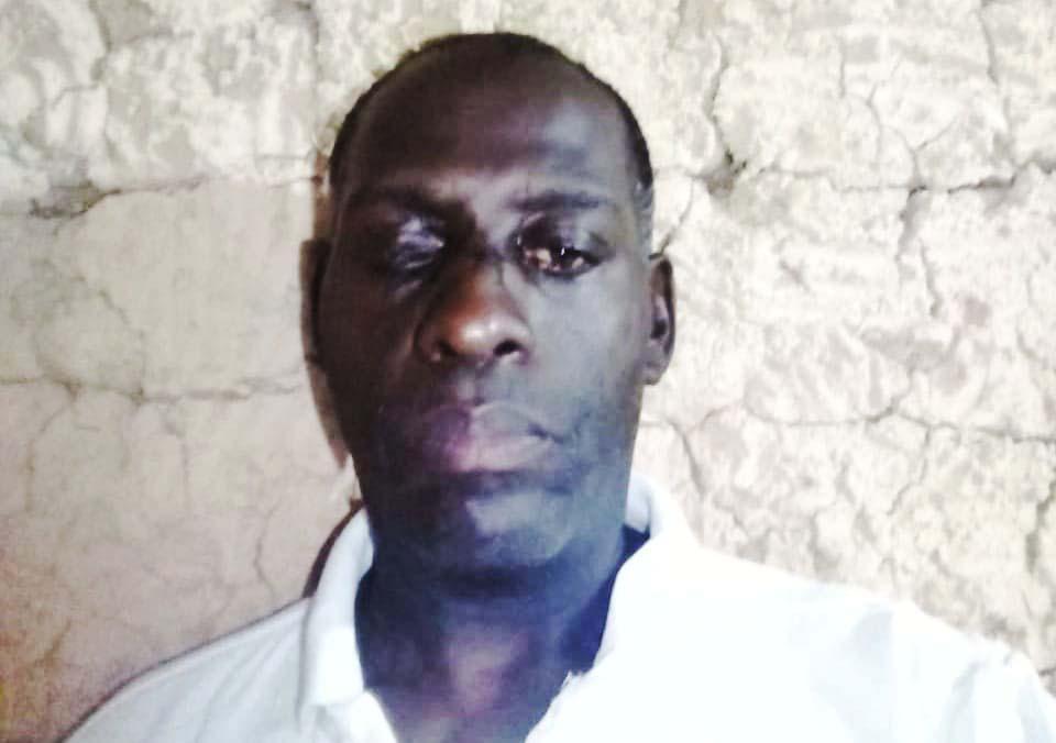 Ativista Marcelo Gerson, que perdeu um olho em 2005 após ser atingido por uma bala de borracha